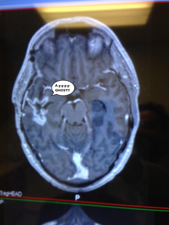 brain_ghost